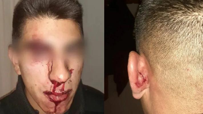 brutal-agresion-a-policias-en-cholila